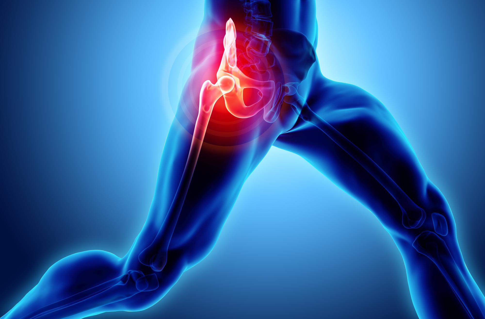 skeleton x-ray focus on hip pain